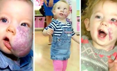 2-Year-Old's facial tumor
